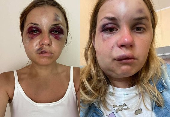 Ukrainian TV presenter suffers horrific injuries after being beaten by a stranger who tried to rape her